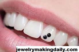 Fakta Pasang Diamond Gigi Yang Harus Anda Ketahui